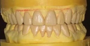 wax-up-300x154
